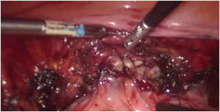 Close up of hysterectomy for endometrial cancer