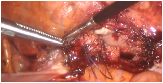 Close up of total hysterectomy